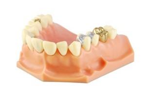 Bioactive Glass Could Make Dental Fillings Last Longer