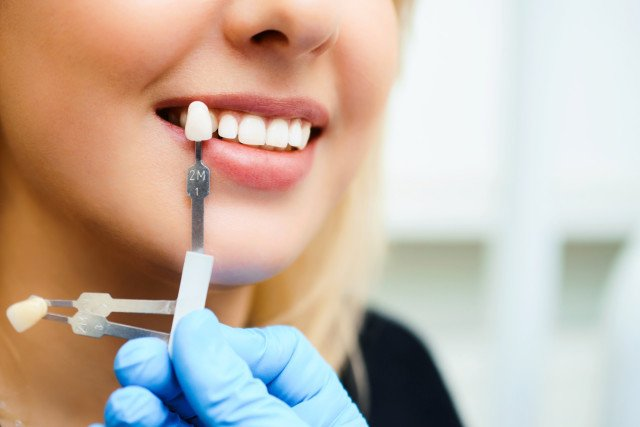 dental implants procedure in charlotte nc