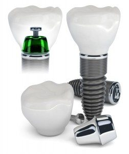 dental implants vs mini dental implants