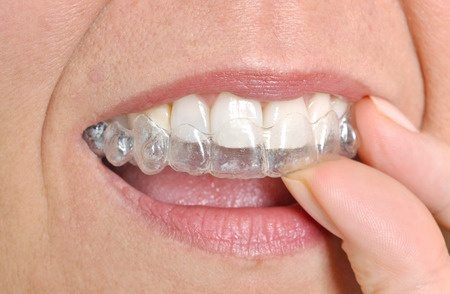 Invisalign Clear Braces Charlotte, NC