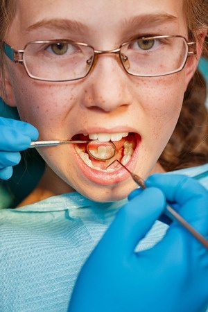 fight dental caries with regular dental visits