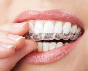 Using Invisalign To Safely Straighten Teeth