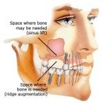 Dental Implants & Sinus Lift Surgery