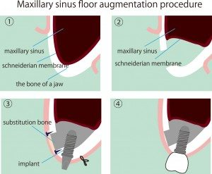 What is a sinus lift surgery and why is it necessary