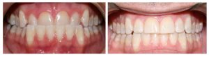 Underbite Before and After Invisalign