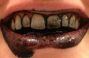 Teeth Brushed With Charcoal