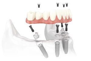 Modern Family Dental Care dental implants