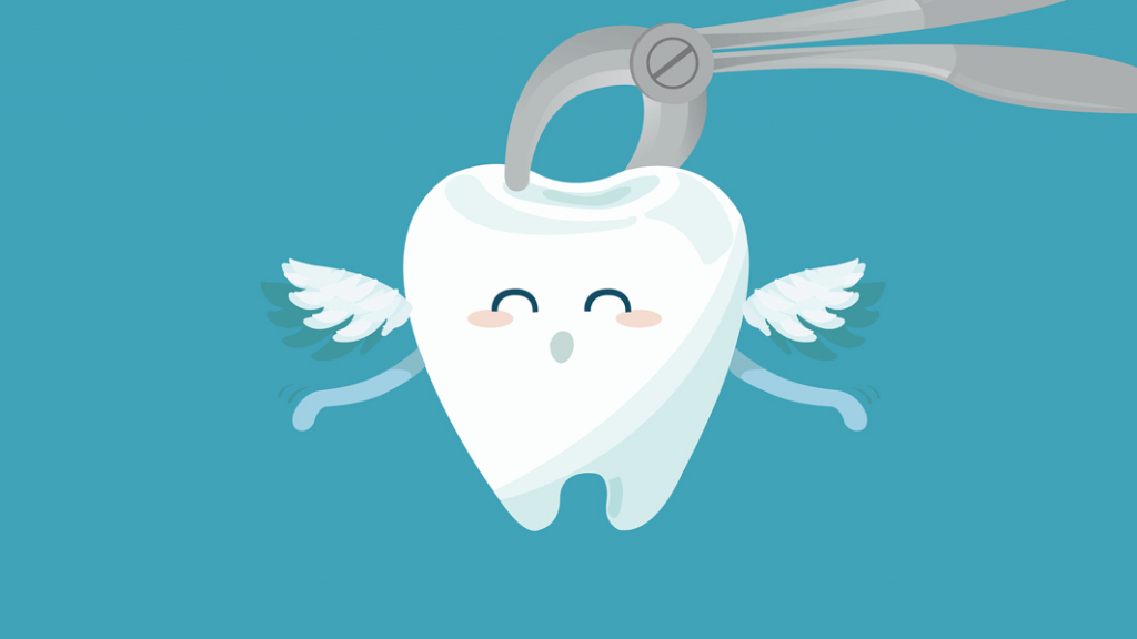 Top 5 Common Reasons for Tooth Extraction