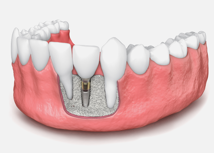All About Bone Grafting Procedures