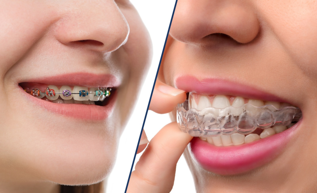 Invisalign® vs. Traditional Braces