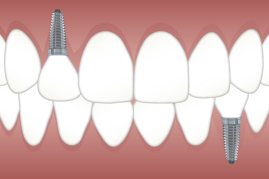Dental Implant Solutions