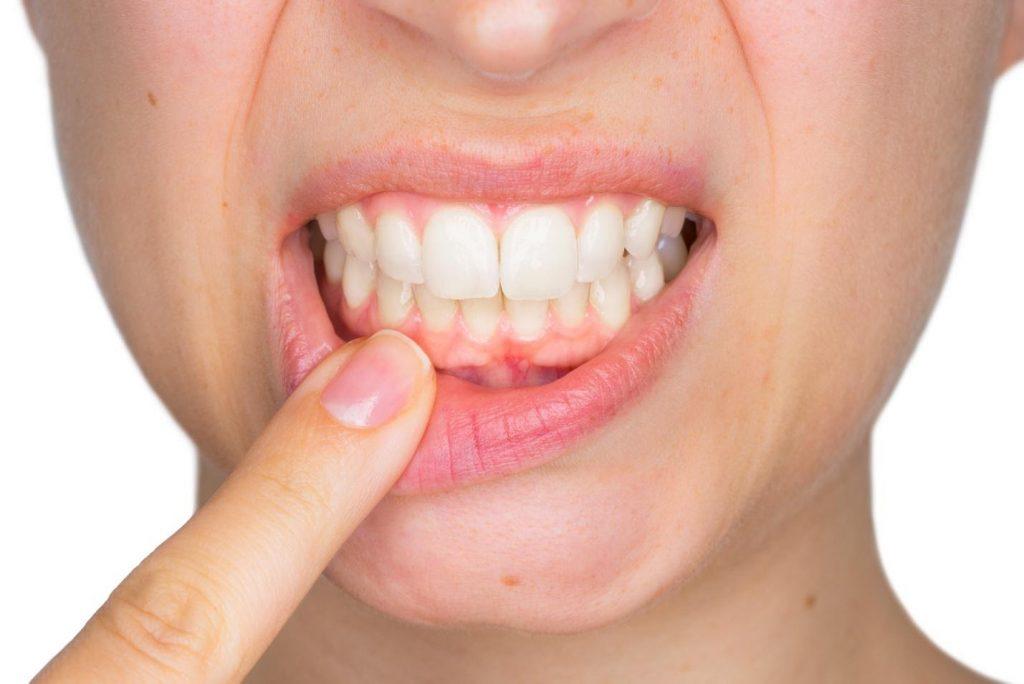 Complications of Chronic Gum Disease