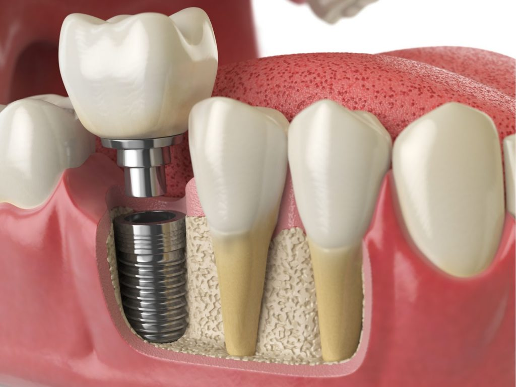 How to Know If You Need Mini Dental Implants?