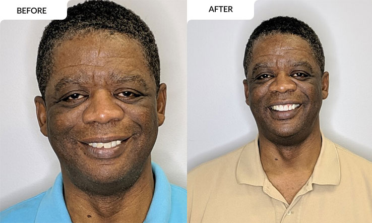 modern family dental care before and after